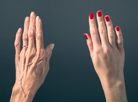 Anti Aging in hands.